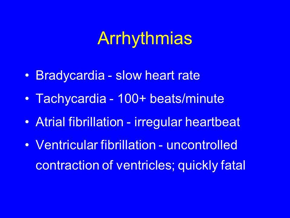 Arrhythmias Bradycardia - slow heart rate