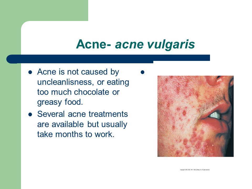 Acne- acne vulgaris Acne is not caused by uncleanlisness, or eating too much chocolate or greasy food.