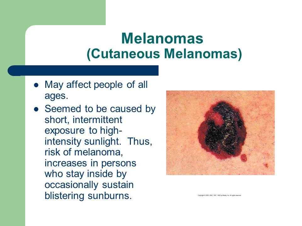 Melanomas (Cutaneous Melanomas)