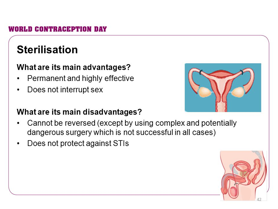 Sterilisation What are its main advantages