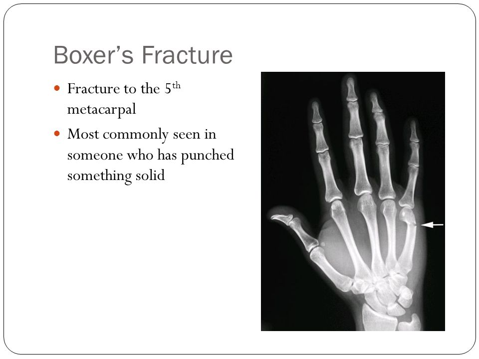 Boxer's Fracture Fracture to the 5th metacarpal