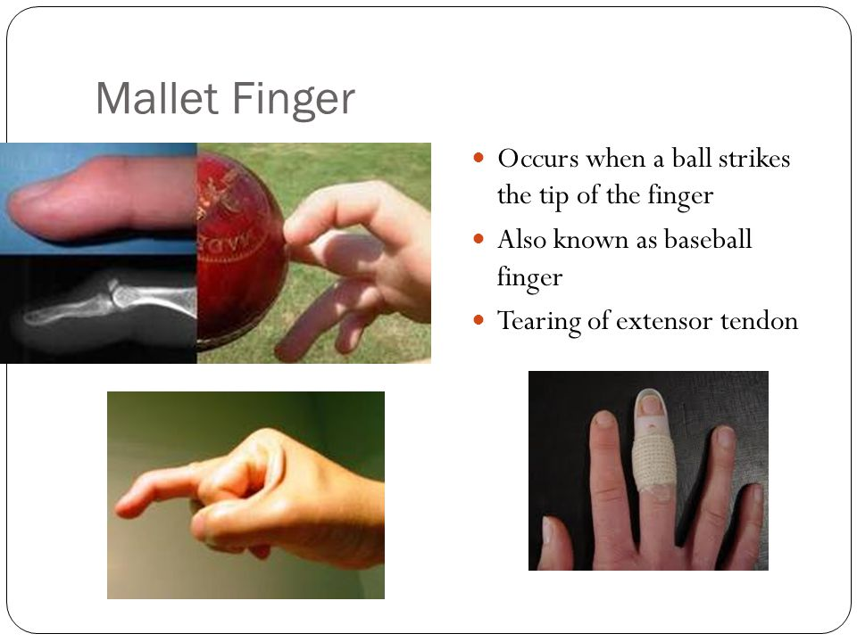 Mallet Finger Occurs when a ball strikes the tip of the finger