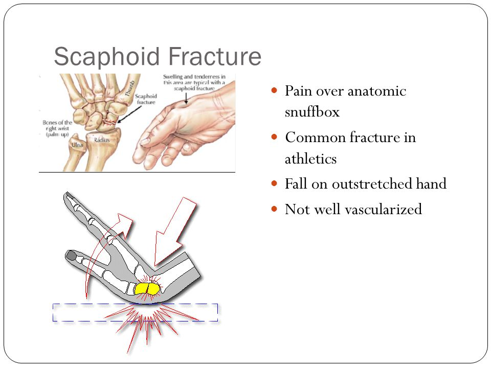 Scaphoid Fracture Pain over anatomic snuffbox