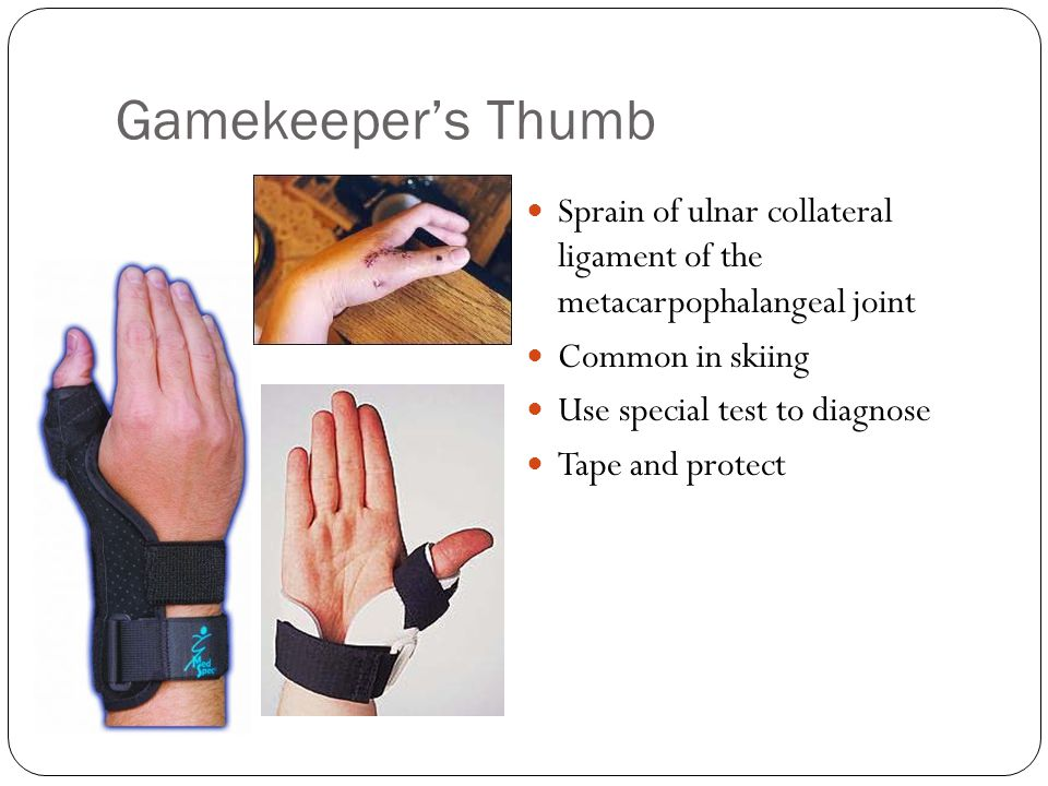 Gamekeeper's Thumb Sprain of ulnar collateral ligament of the metacarpophalangeal joint. Common in skiing.