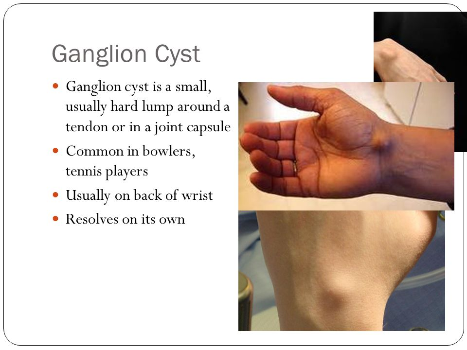 Ganglion Cyst Ganglion cyst is a small, usually hard lump around a tendon or in a joint capsule. Common in bowlers, tennis players.