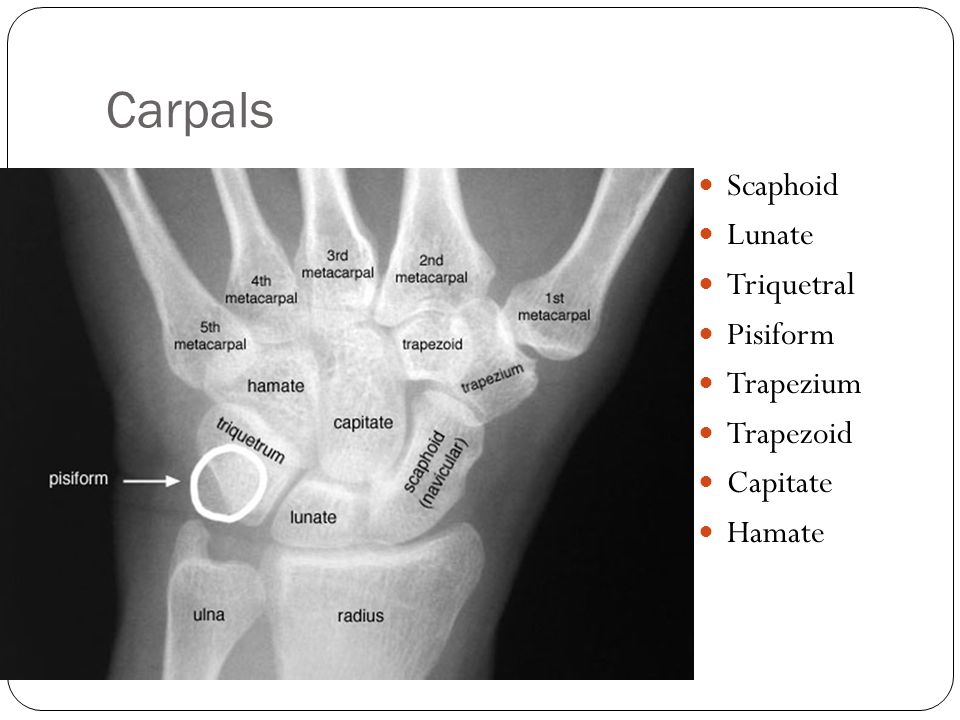Carpals Scaphoid Lunate Triquetral Pisiform Trapezium Trapezoid