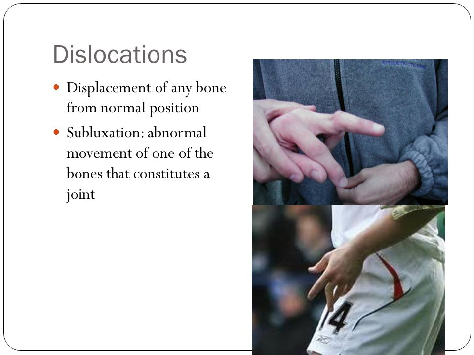 Dislocations Displacement of any bone from normal position