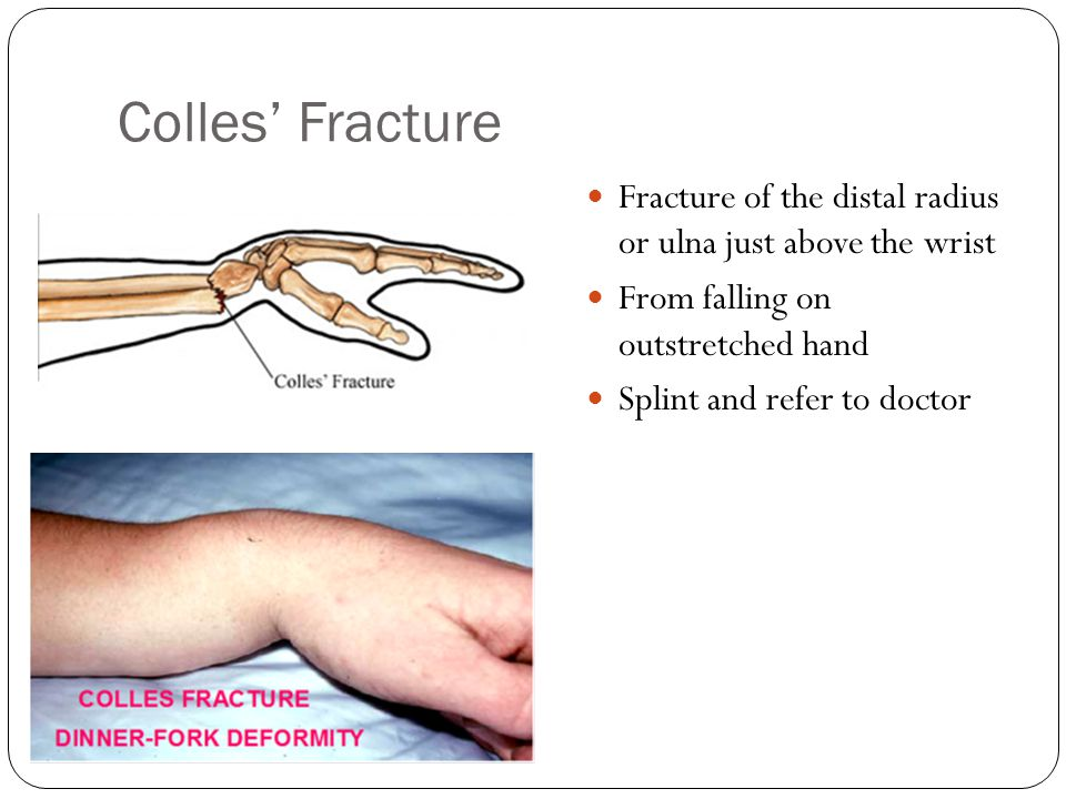 Colles' Fracture Fracture of the distal radius or ulna just above the wrist. From falling on outstretched hand.