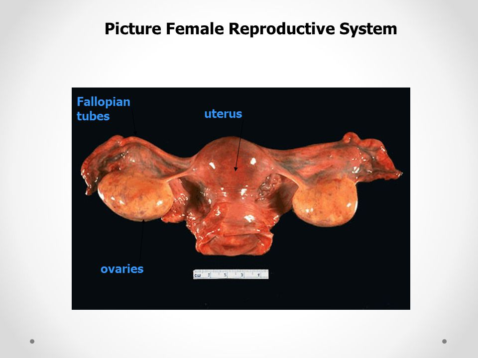 Picture Female Reproductive System