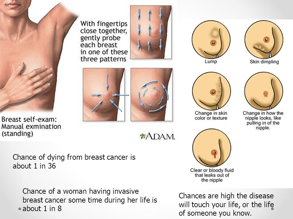 Chance of dying from breast cancer is about 1 in 36
