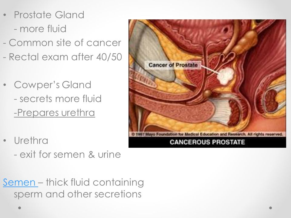 Prostate Gland - more fluid. - Common site of cancer. - Rectal exam after 40/50. Cowper's Gland.