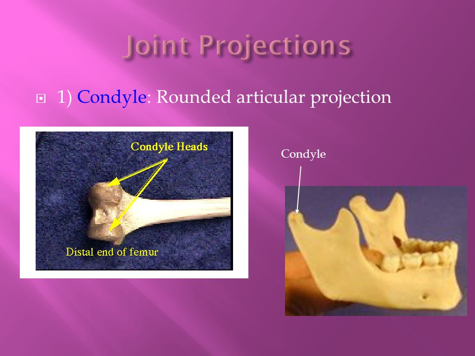 Joint Projections 1) Condyle: Rounded articular projection Condyle