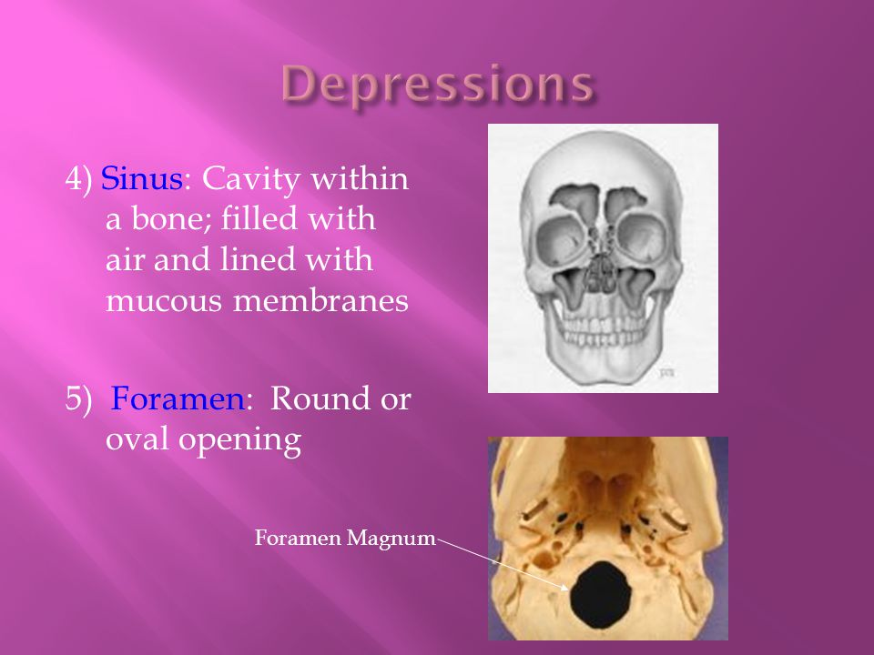 Depressions 4) Sinus: Cavity within a bone; filled with air and lined with mucous membranes. 5) Foramen: Round or oval opening.