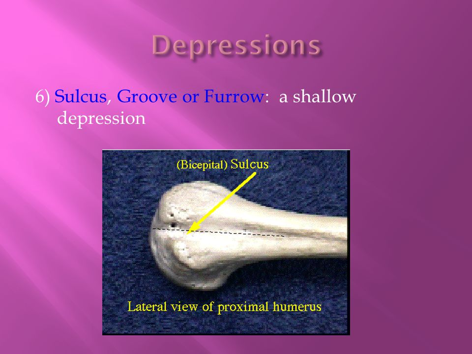 Depressions 6) Sulcus, Groove or Furrow: a shallow depression