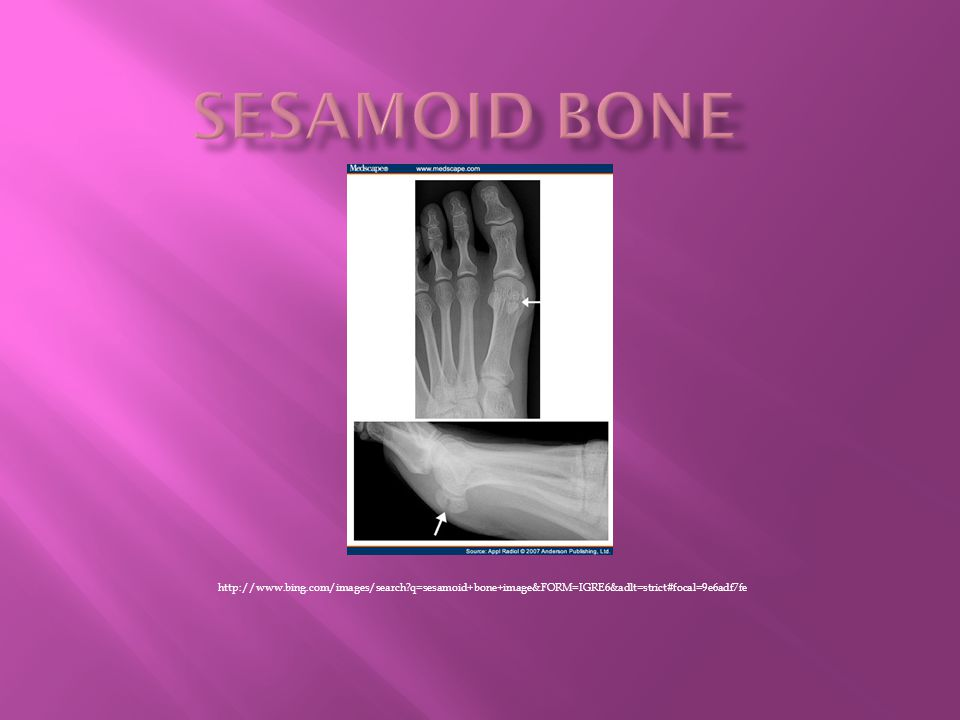 SESAMOID BONE http://www.bing.com/images/search q=sesamoid+bone+image&FORM=IGRE6&adlt=strict#focal=9e6adf7fe.