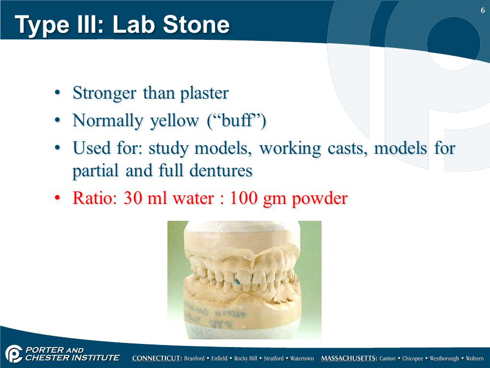 Type III: Lab Stone Stronger than plaster Normally yellow ( buff )