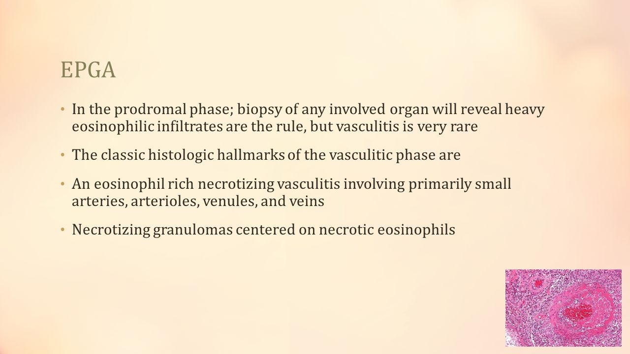 EPGA In the prodromal phase; biopsy of any involved organ will reveal heavy eosinophilic infiltrates are the rule, but vasculitis is very rare.