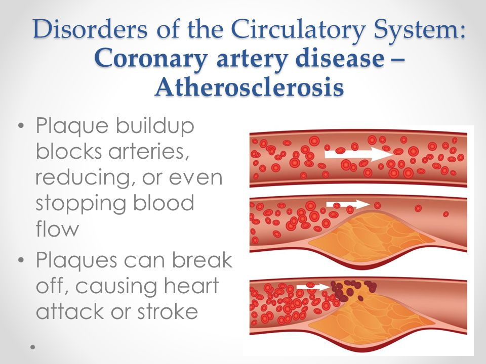 Disorders of the Circulatory System: Coronary artery disease – Atherosclerosis