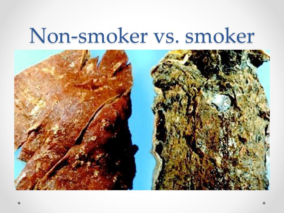Non-smoker vs. smoker