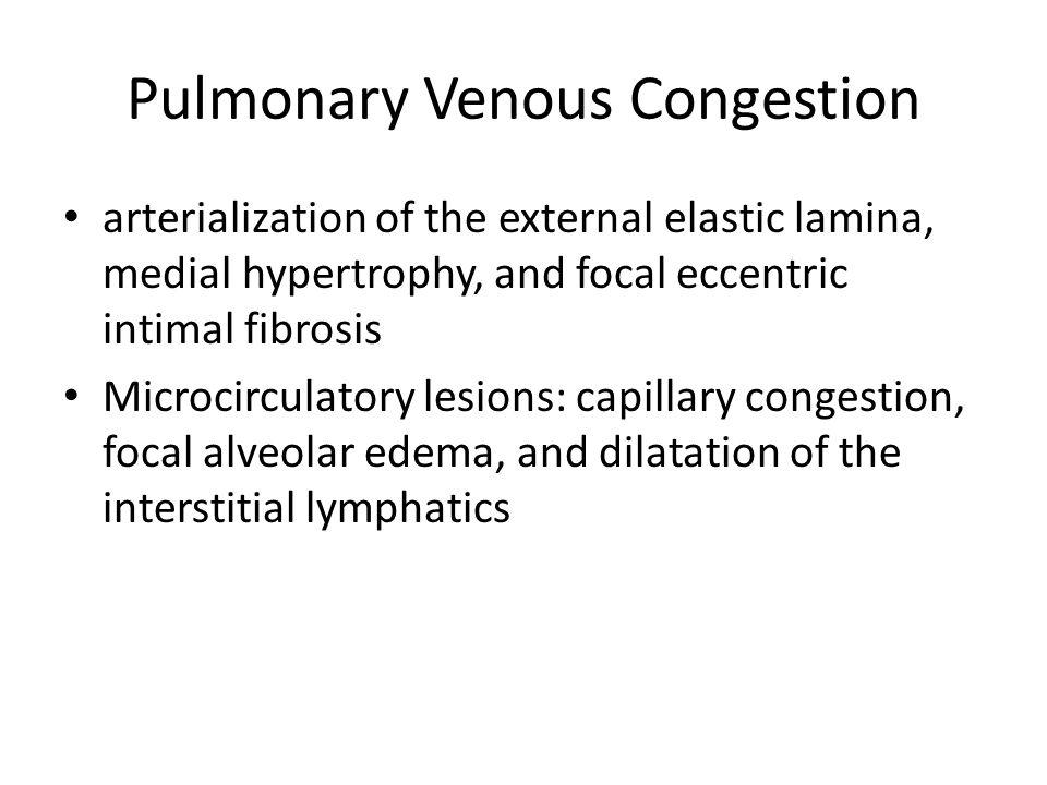 Pulmonary Venous Congestion