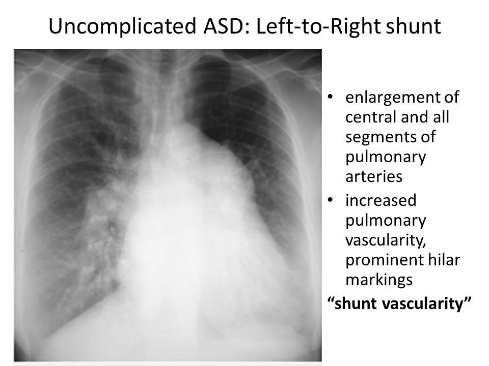 Uncomplicated ASD: Left-to-Right shunt