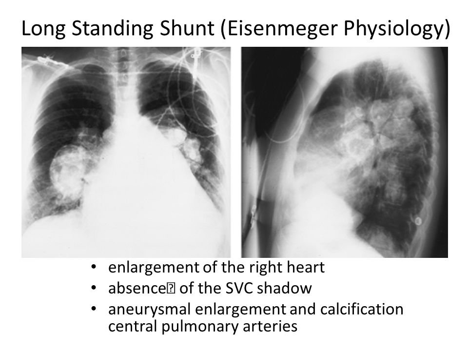 Long Standing Shunt (Eisenmeger Physiology)