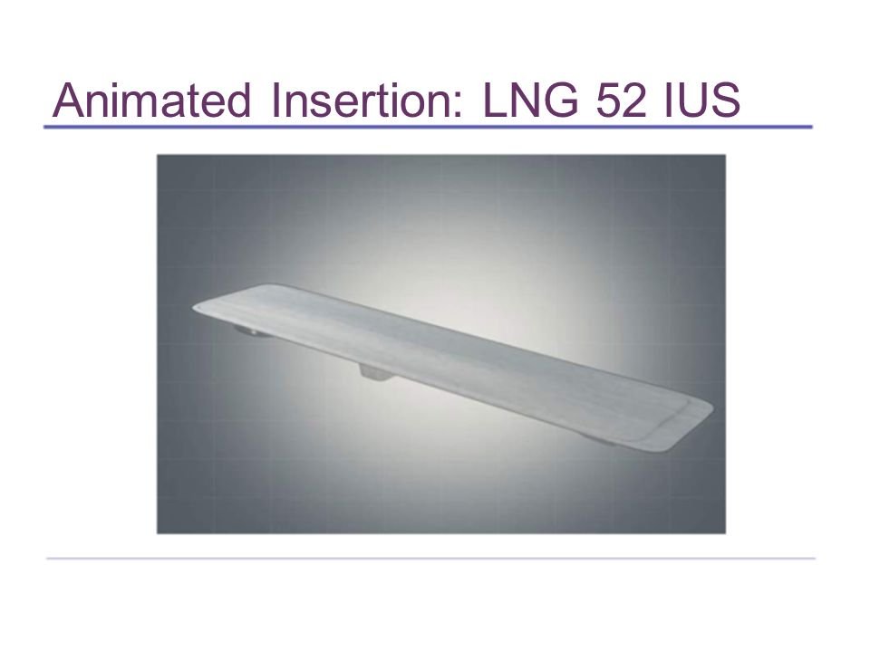 Animated Insertion: LNG 52 IUS