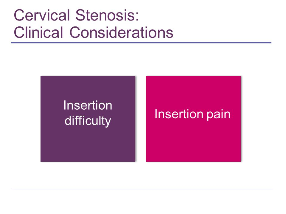Cervical Stenosis: Clinical Considerations