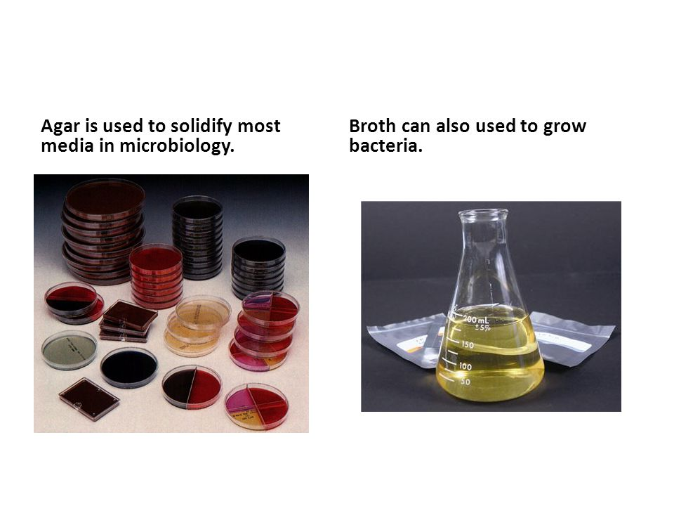 Agar is used to solidify most media in microbiology.