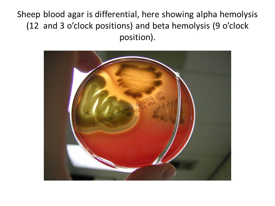 Sheep blood agar is differential, here showing alpha hemolysis (12 and 3 o'clock positions) and beta hemolysis (9 o'clock position).