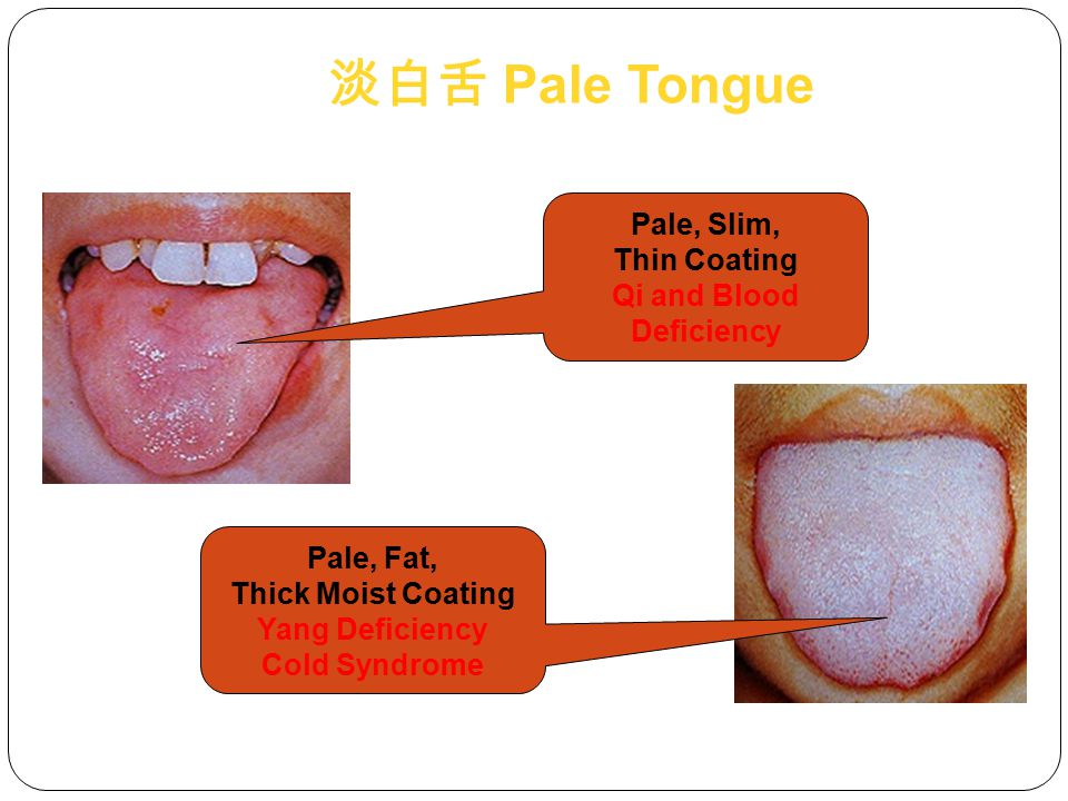 Qi and Blood Deficiency Pale, Fat, Thick Moist Coating