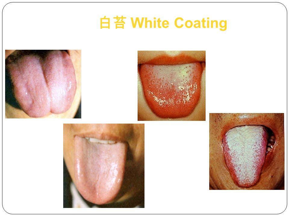 白苔 White Coating