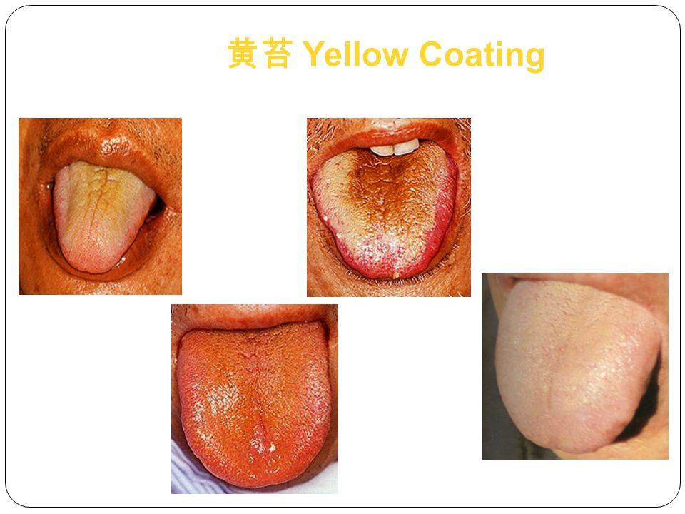 黄苔 Yellow Coating