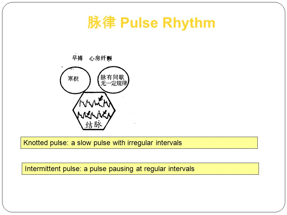 脉律 Pulse Rhythm Knotted pulse: a slow pulse with irregular intervals
