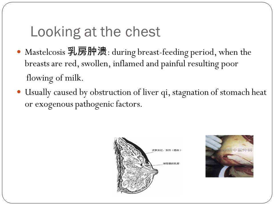 Looking at the chest Mastelcosis 乳房肿溃: during breast-feeding period, when the breasts are red, swollen, inflamed and painful resulting poor.