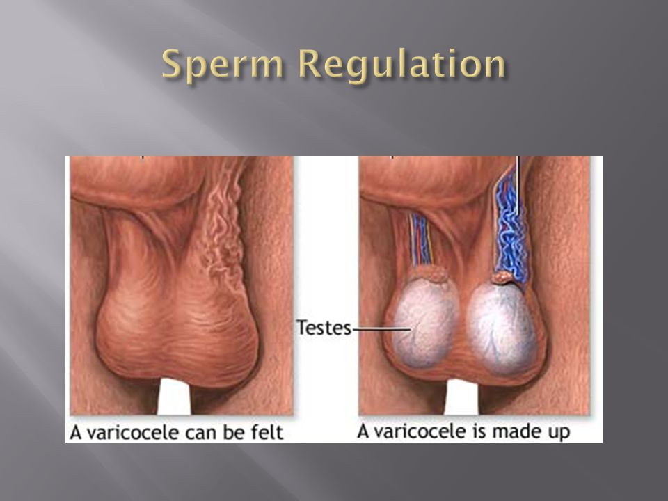 Sperm Regulation