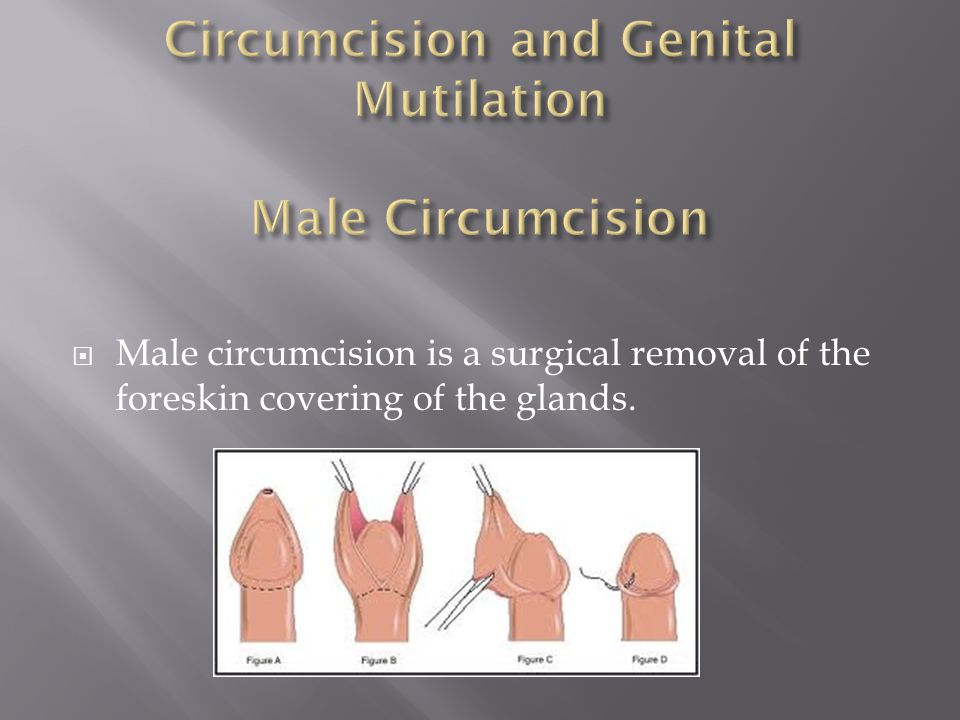 Circumcision and Genital Mutilation Male Circumcision