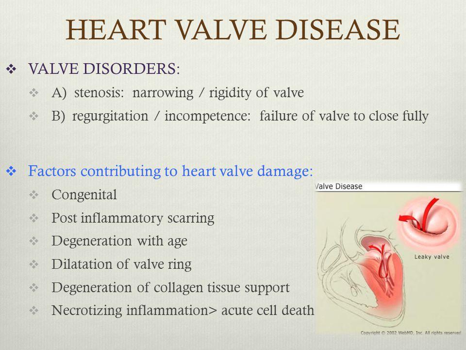 HEART VALVE DISEASE VALVE DISORDERS: