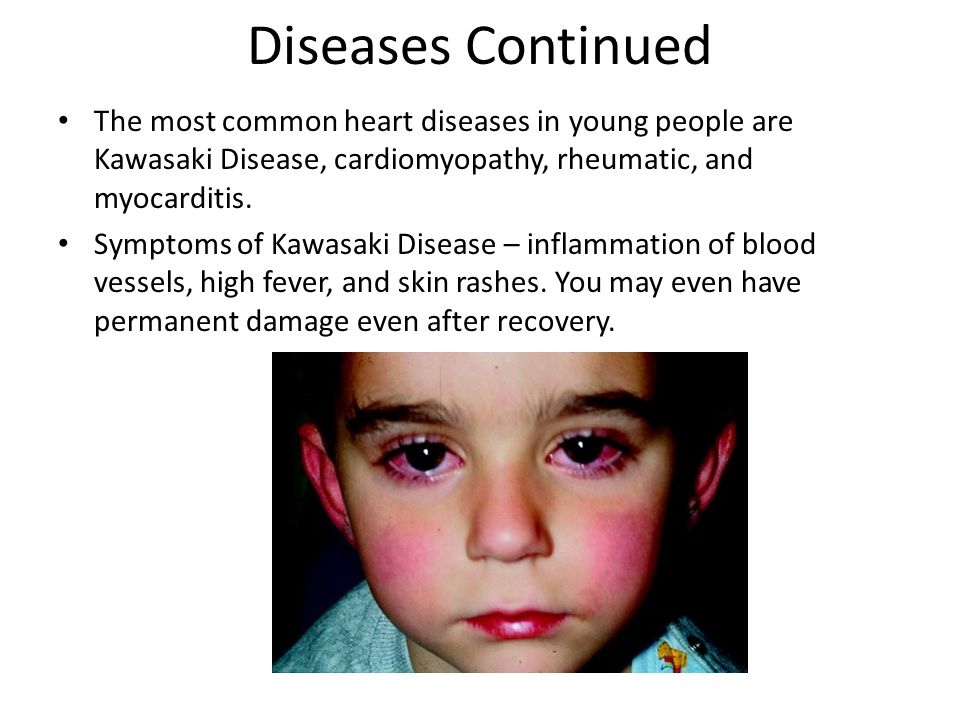 Diseases Continued The most common heart diseases in young people are Kawasaki Disease, cardiomyopathy, rheumatic, and myocarditis.