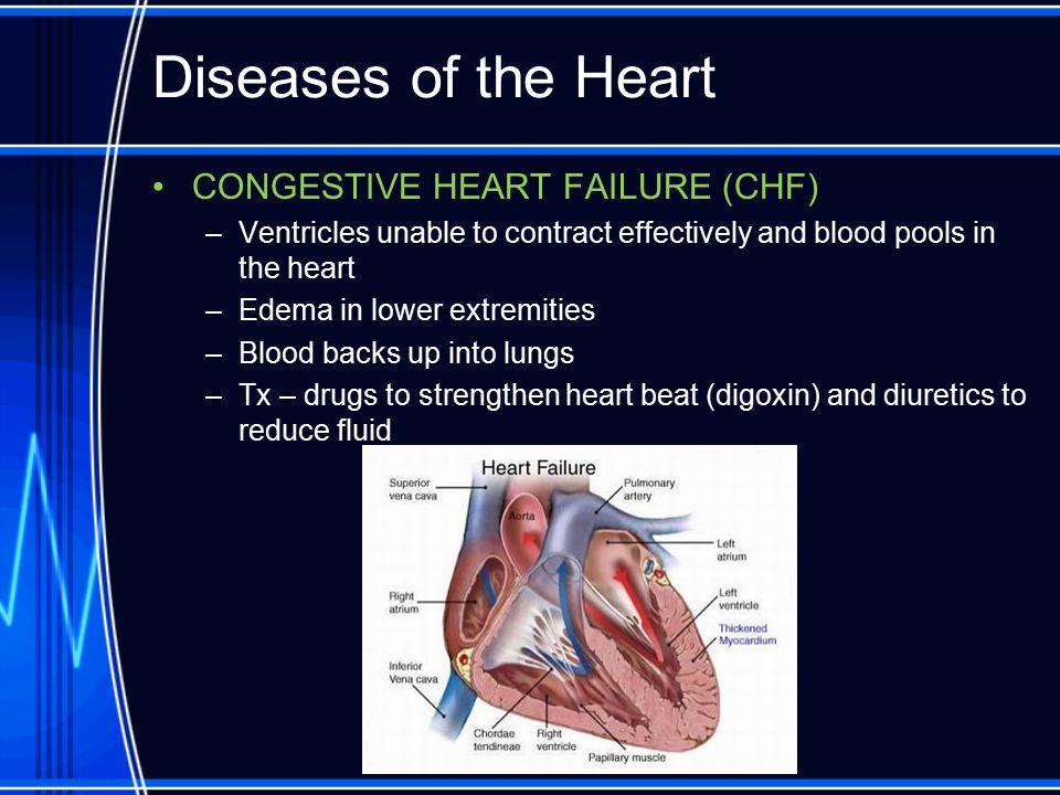 Diseases of the Heart CONGESTIVE HEART FAILURE (CHF)