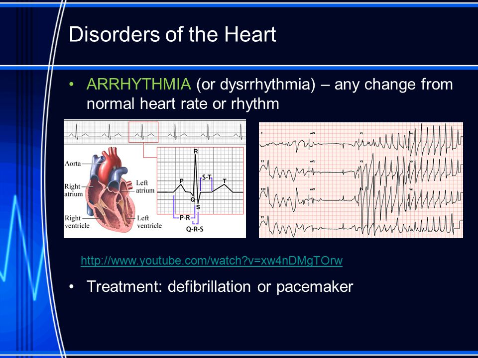 Disorders of the Heart ARRHYTHMIA (or dysrrhythmia) – any change from normal heart rate or rhythm. Treatment: defibrillation or pacemaker.
