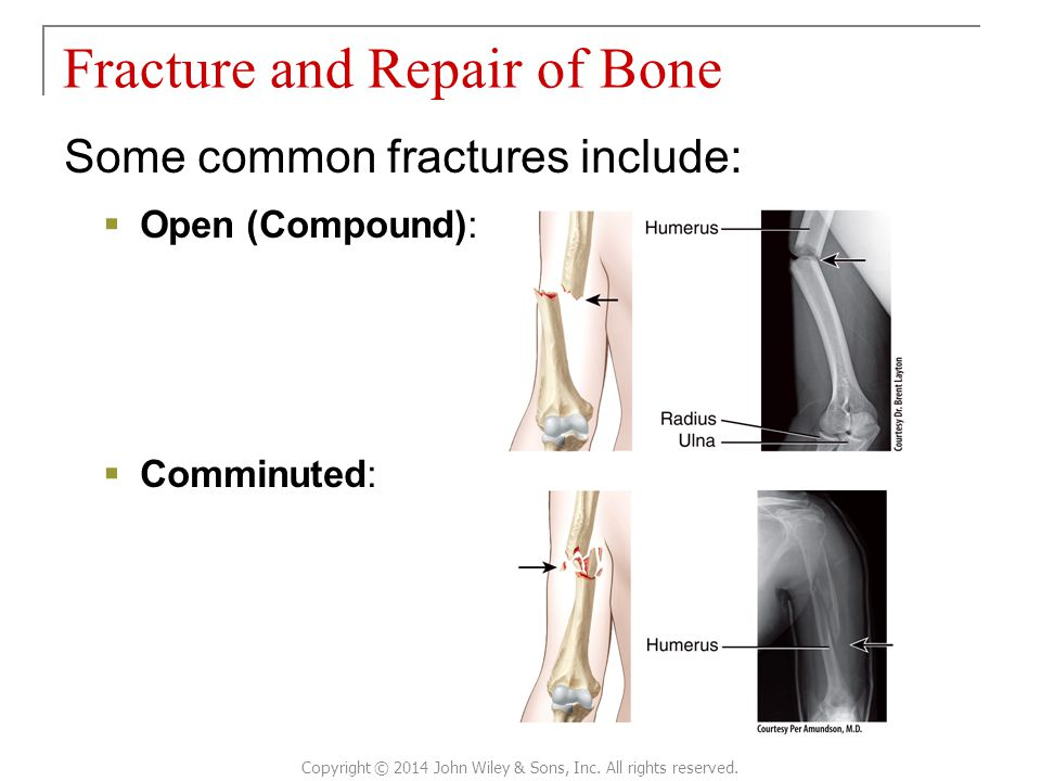 Fracture and Repair of Bone