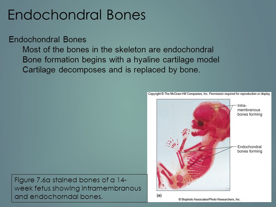 Endochondral Bones Endochondral Bones