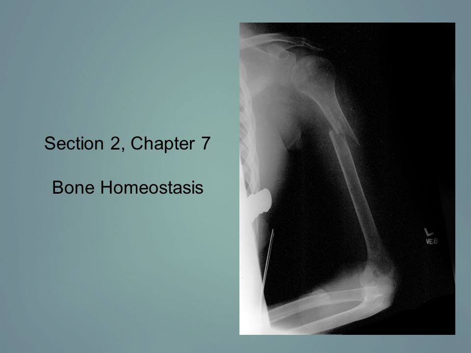 Section 2, Chapter 7 Bone Homeostasis
