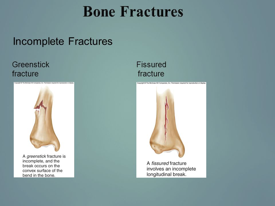 Bone Fractures Incomplete Fractures Greenstick fracture Fissured