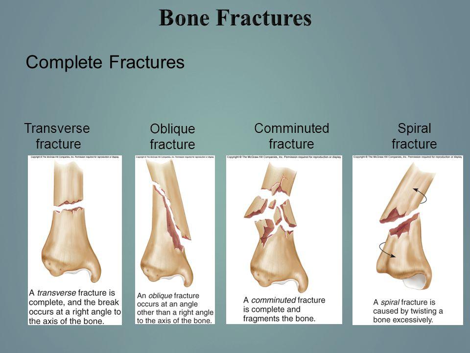 Bone Fractures Complete Fractures Transverse fracture Oblique fracture