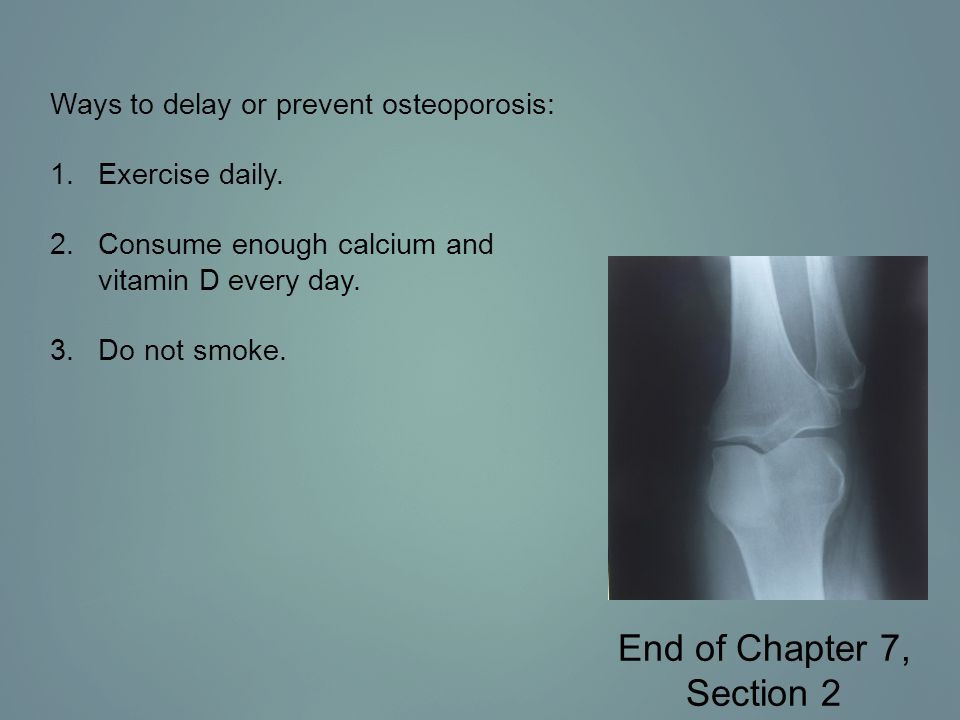 End of Chapter 7, Section 2 Ways to delay or prevent osteoporosis: