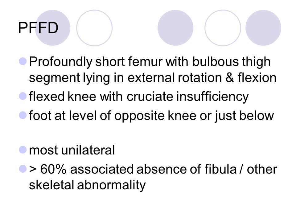 PFFD Profoundly short femur with bulbous thigh segment lying in external rotation & flexion. flexed knee with cruciate insufficiency.