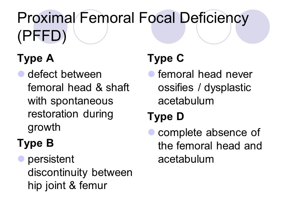 Proximal Femoral Focal Deficiency (PFFD)