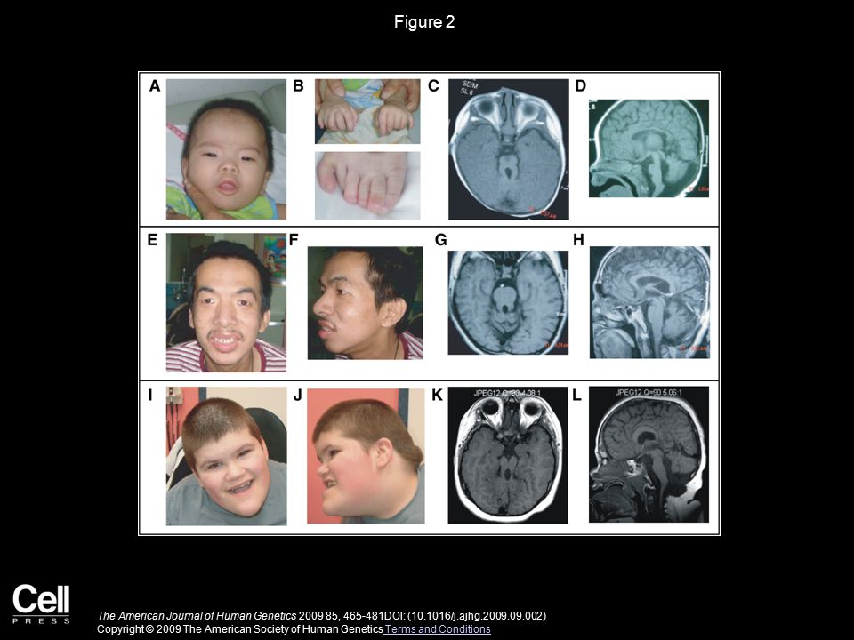 Figure 2 Clinical Phenotype of Family W07-713 and Isolated Patient UW87.